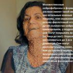 Болезнь Реклингхаузена (Нейрофиброматоз)