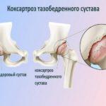 Как избежать замены сустава ?