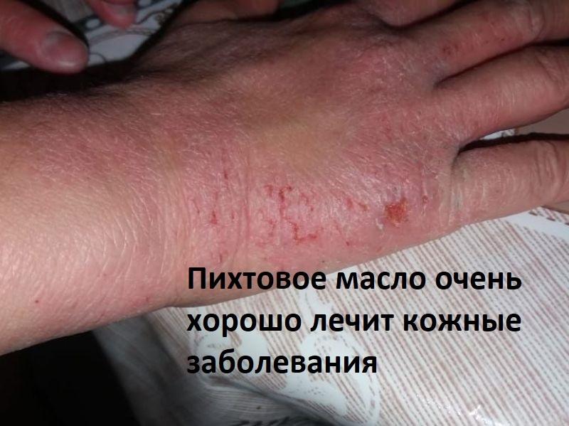 кожные заболевания и пихтовое масло