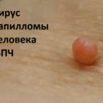 Вирус папилломы человека( ВПЧ)  вызывает плоскоклеточный рак
