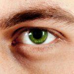 К вопросу о волосяном коме десницы ока