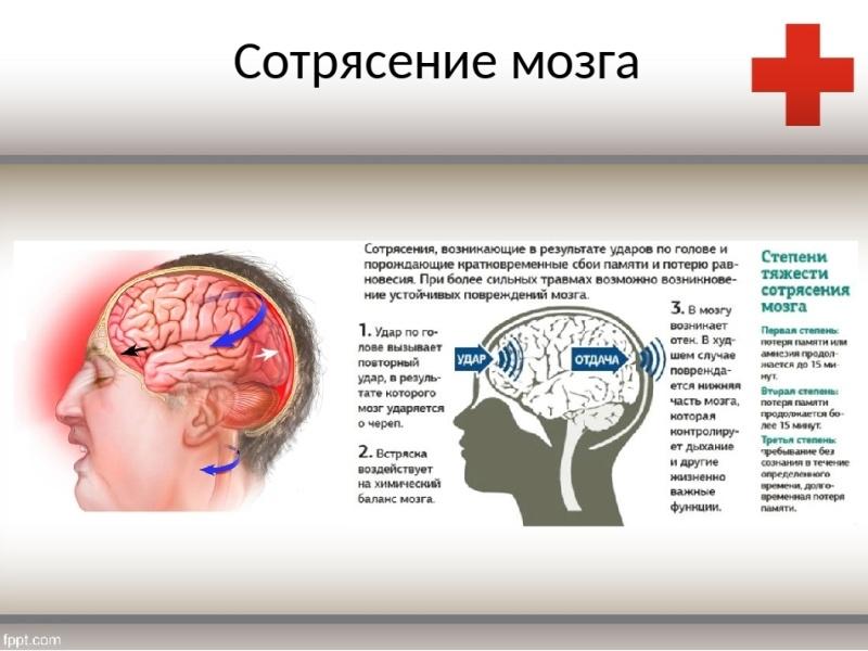 Сотрясение головного мозга – симптомы, признаки, первая ...