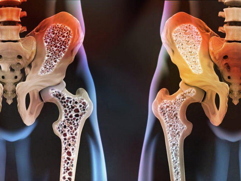 Кости таза при остеопорозе