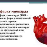 Боятся рака, а умирают от инфаркта