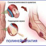 Полинейропатия – что это такое ?
