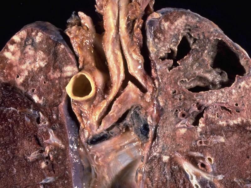 Запущенная стадия инфильтративного туберкулеза сопровождается образованием в легких каверн.