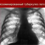 Сердюк А.А. о туберкулёзе.