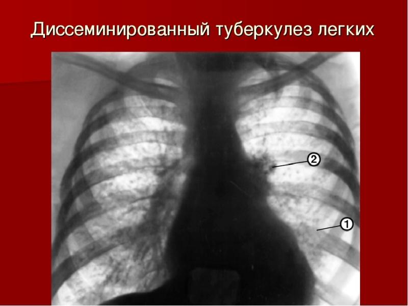 диссеминированный туберкулёз лёгких