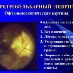 Заболевания глаз – ретробульбарный неврит