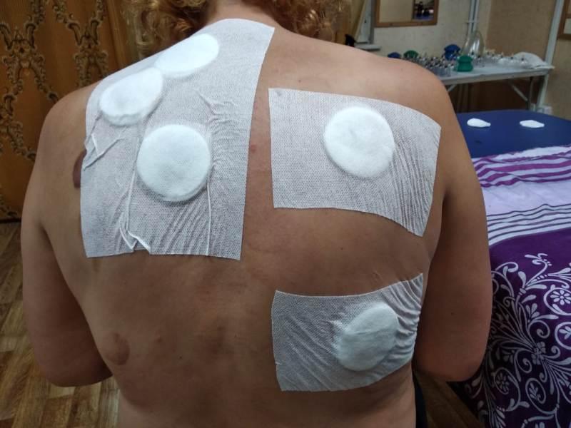 перевязка на раны после вытягивания пузырей