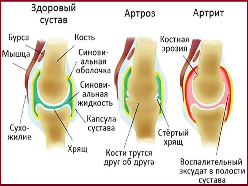 здоровые и больные суставы