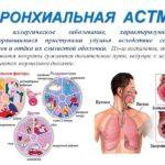 Бронхиальная астма. Пример из практики.