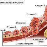 Пример из практики. Первичный рак .